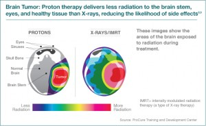 What Are The Advantages Of Proton Therapy Proton